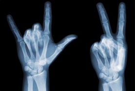 The Electromagnetic Spectrum: X-rays